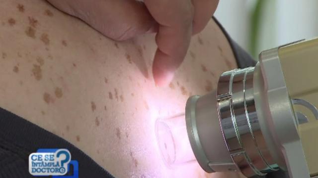 Când trebuie verificate petele și leziunile de pe piele pentru a evita bolile grave