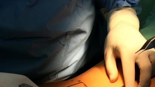 chirurg, chirurgie