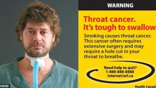 Cea mai socanta campanie anti-fumat. Bolnavi de cancer pe patul de moarte, pe pachetele de tigari - Imaginea 2