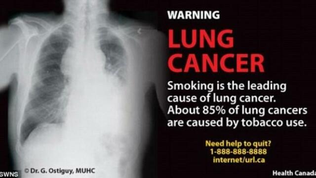 Cea mai socanta campanie anti-fumat. Bolnavi de cancer pe patul de moarte, pe pachetele de tigari - Imaginea 6