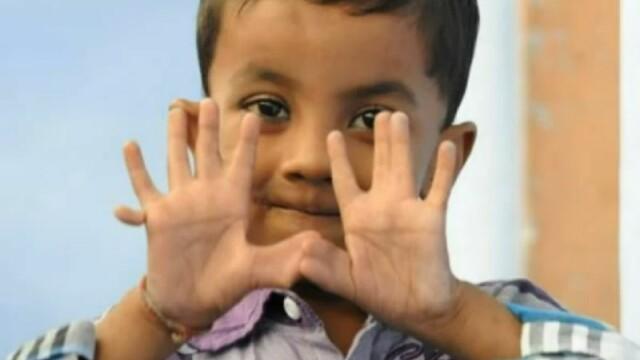 Povestea lui Arpan Saxena, copilul de 4 ani care are 25 de degete. Parintii: \