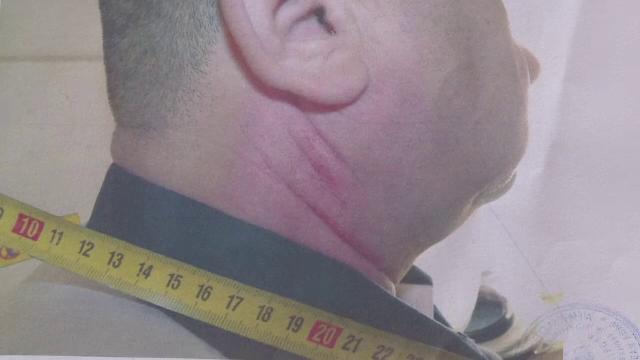 politist atacat