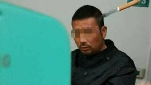 Barbat cu un cutit infipt in cap pozat in timp ce se plimba calm pe holul spitalului. GALERIE FOTO - Imaginea 1