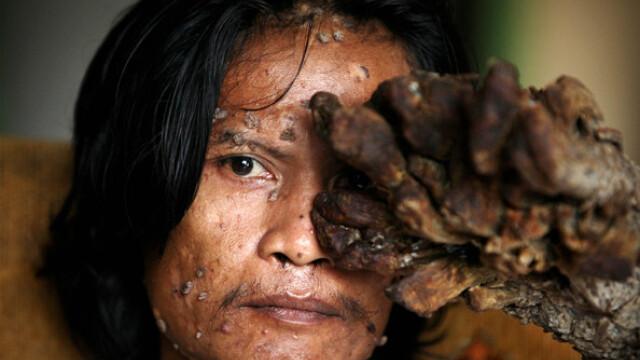Povestea trista a omului copac. Calvarul la care este condamnat din cauza unei boli incurabile - Imaginea 2