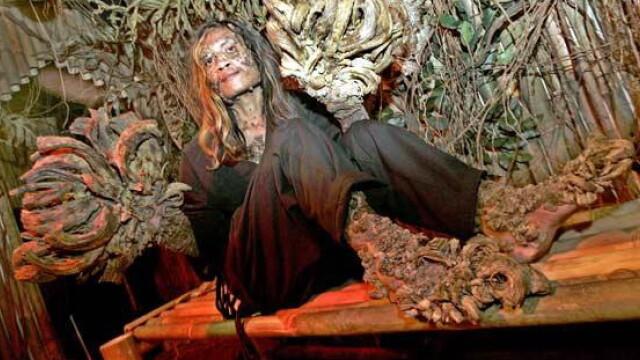 Povestea trista a omului copac. Calvarul la care este condamnat din cauza unei boli incurabile - Imaginea 4