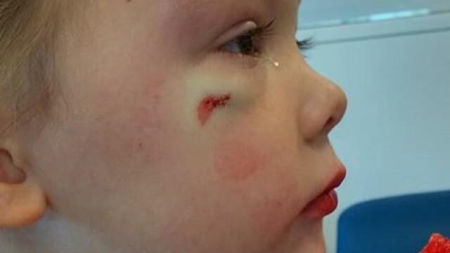 Ce a facut o mama dupa ce fetita ei de 4 ani a fost batuta de un baiat la scoala. Gestul ei a devenit viral pe internet