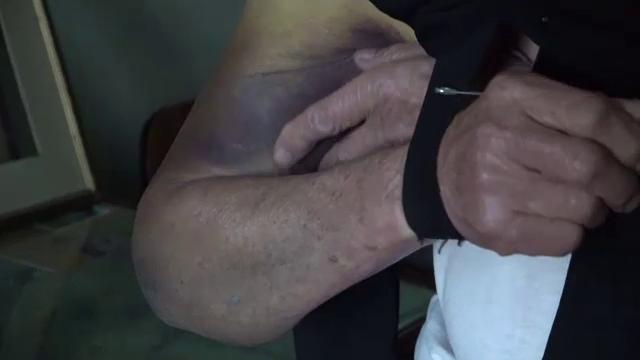 """Un bărbat eliberat din închisoare a agresat două bătrâne. """"M-am trezit cu pumni în cap"""" - Imaginea 2"""