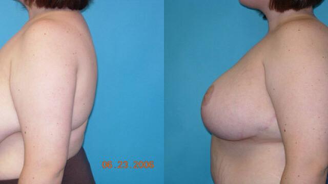 Scandal in SUA. Un medic a publicat poze cu sanii pacientelor fara ca acestea sa stie. GALERIE FOTO - Imaginea 6