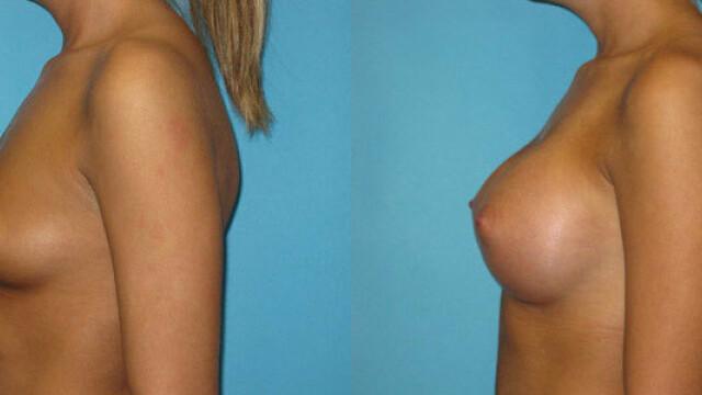 Scandal in SUA. Un medic a publicat poze cu sanii pacientelor fara ca acestea sa stie. GALERIE FOTO - Imaginea 7
