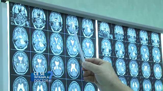 Tulburările care apar în urma instalării bolilor în emisfera stângă a creierului