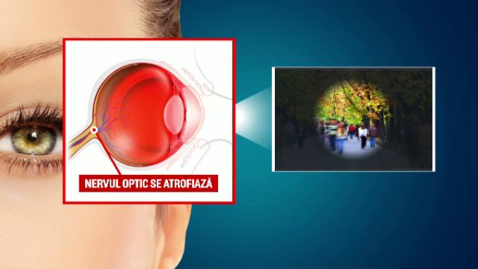 cum se salvează vederea în glaucom test de vedere pentru cei mici