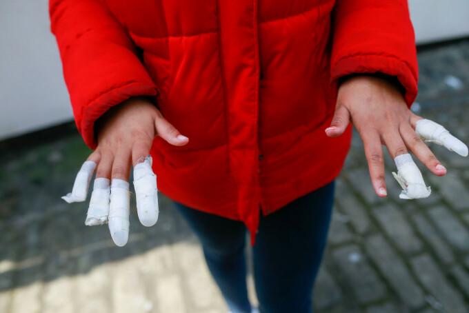 Adolescentă de 13 ani, atacată de mai multe tinere