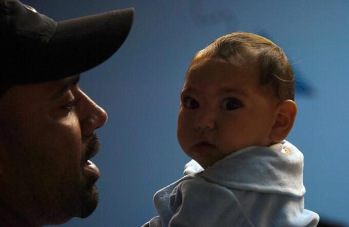 copil suferind de microcefalie de Zika