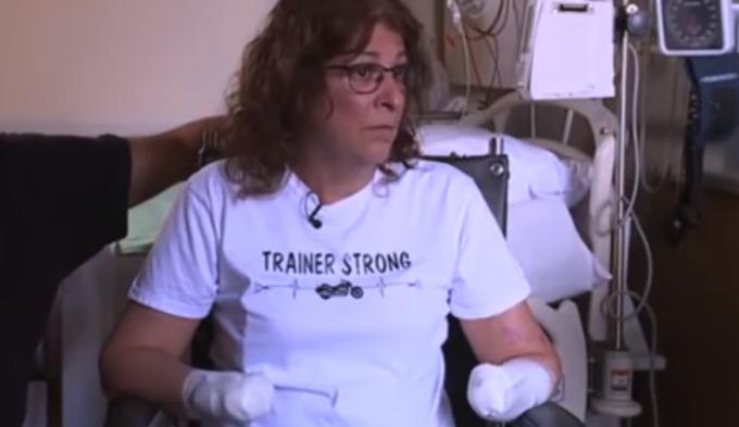 Infecția care a lăsat-o pe o femeie fără mâini și picioare, după ce a fost linsă de câine