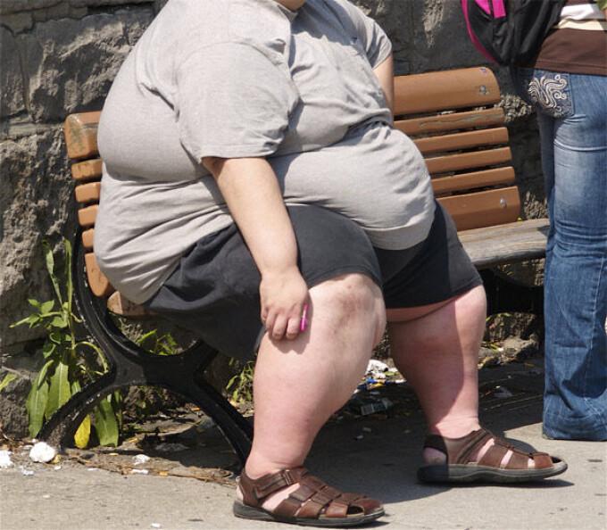 arderea grăsimilor în obezitate