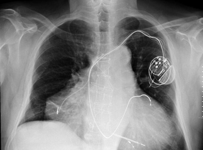 pacient cu doua inimi