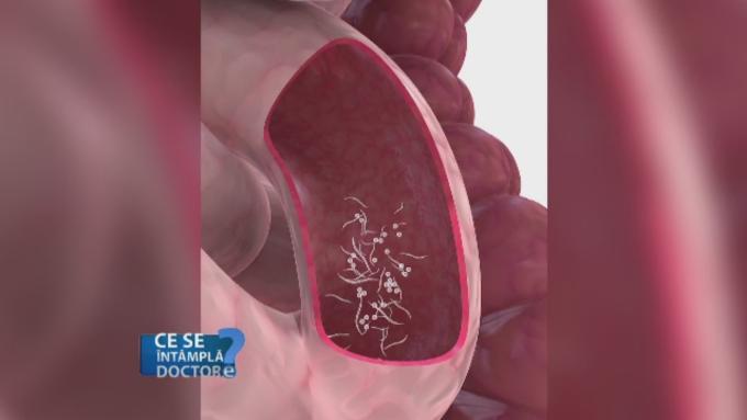 prevenirea viermilor și a pastilelor parazite