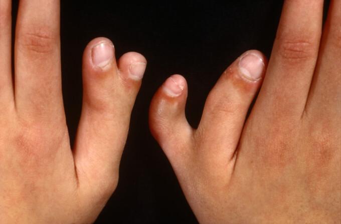 chitariști și artrita degetelor)