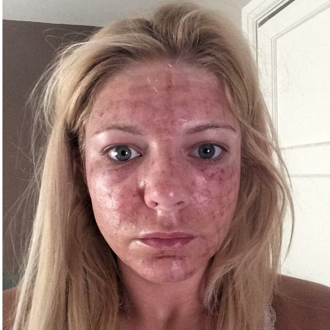 Si A Facut Un Tratament Facial Cu Laser Si A Ramas Socata