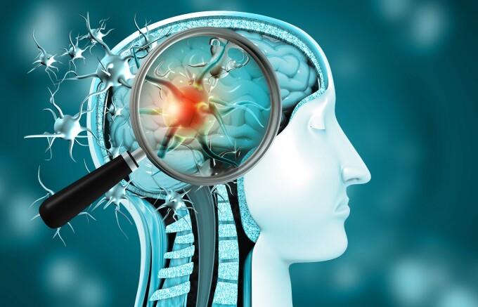 Cu ce afecțiuni neurologice pot rămâne pacienții care au fost infectați COVID? Simptomele, explicate de neurologul Dan Filip