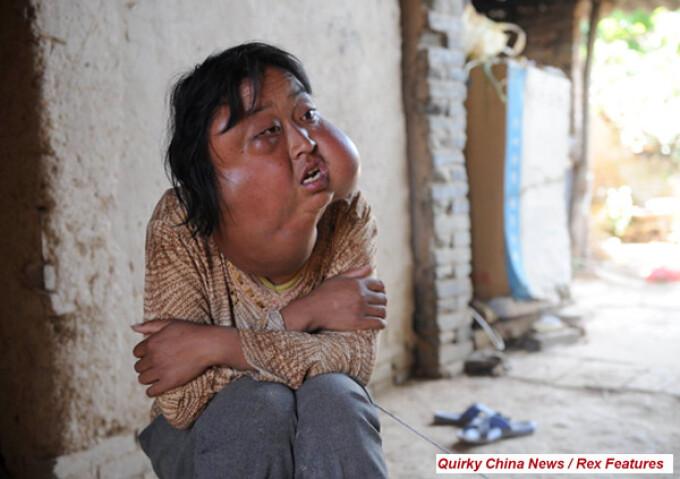 Li Honfang, femeie cu tumori pe fata