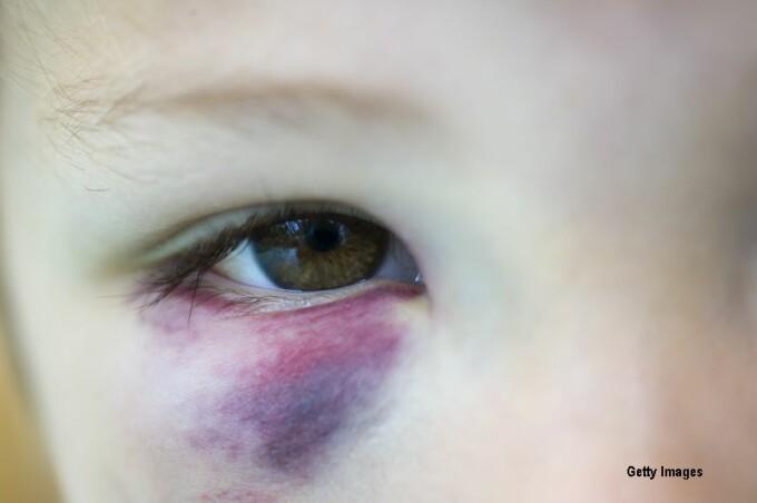 copil cu ochiul vanat