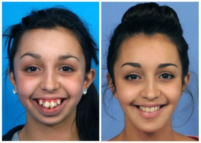 maxilarul slăbit înainte și după