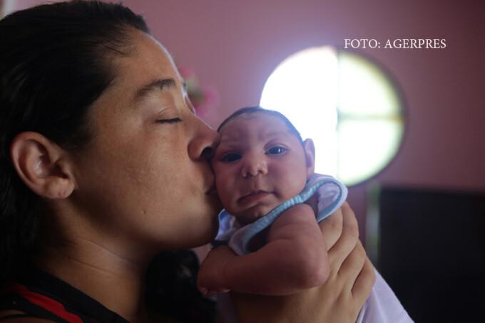 mama tinand in brate un copil cu microcefalie provocata de Zika