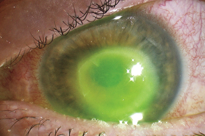 parazit în ochi