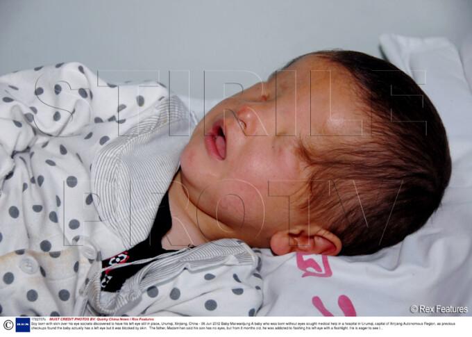 copil nascut fara ochi, China
