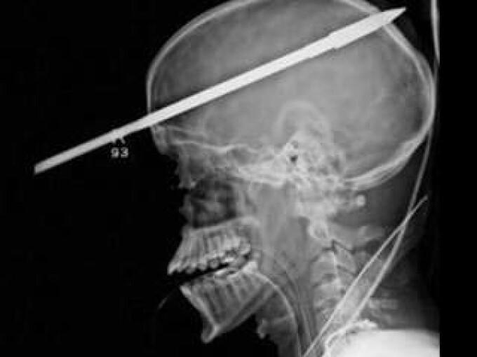 Radiografie sulita craniu