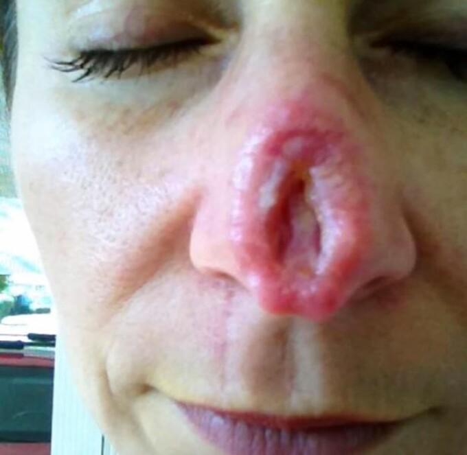 cancer de piele la fata