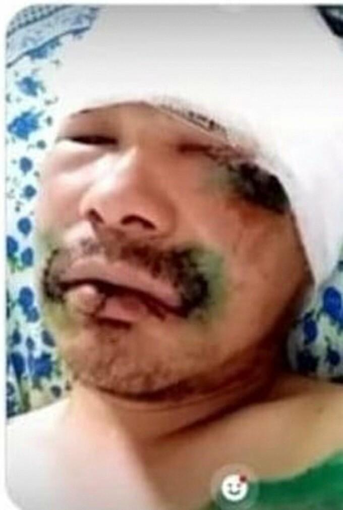 Mărturia unui bărbat desfigurat de urs. A scăpat după ce a mușcat bestia de limbă. FOTO - 2