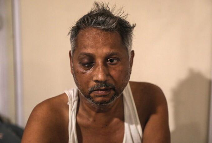 Pacient infectat cu ciuperca neagra