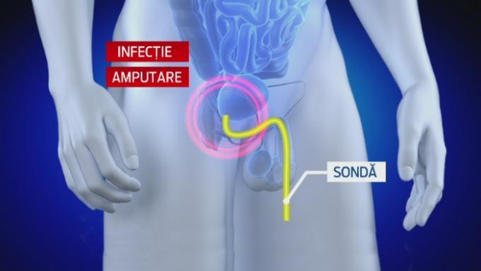 chirurgie cum se taie penisul