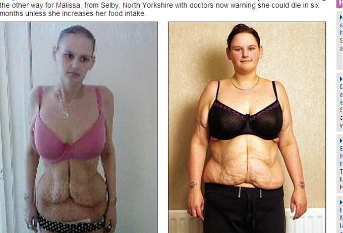 Malissa Jones, anorexica