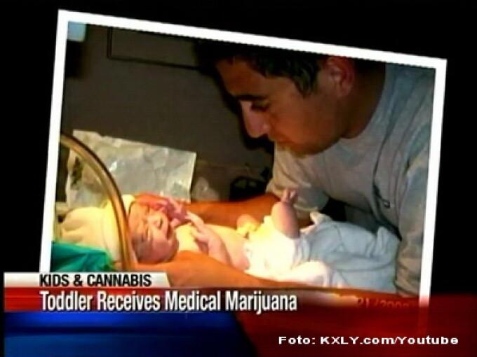 Copil tratat cu ulei de cannabis