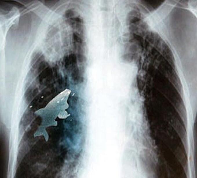 Radiografie peste