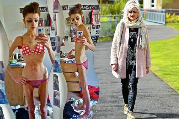 anorexica