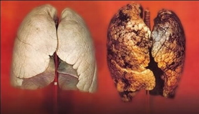 Plamani sanatosi vs. plamani bolnavi