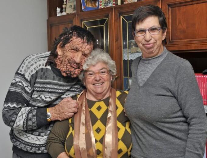 Vinicio Riva, 53