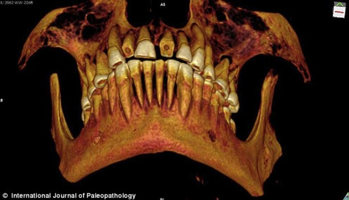 craniu mumie egipteana, dinti