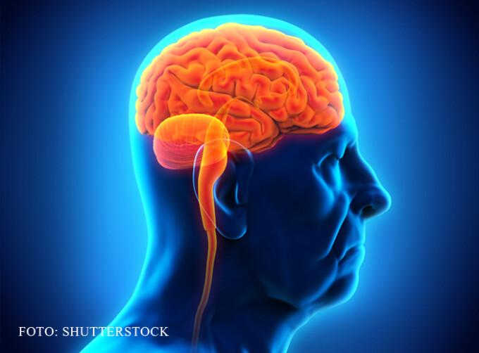 grafica creier afectat de Alzheimer