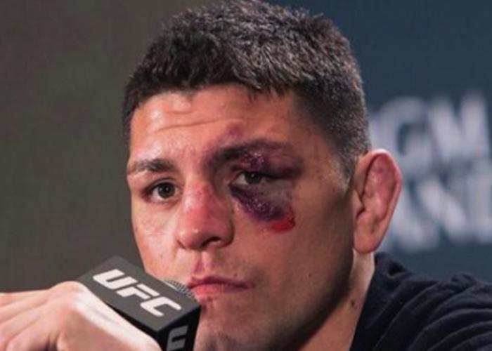 Patru barbati l-au atacat pe luptatorul din MMA, Nick Diaz, intr-un club: Nu cred ca stiau ei cine sunt!
