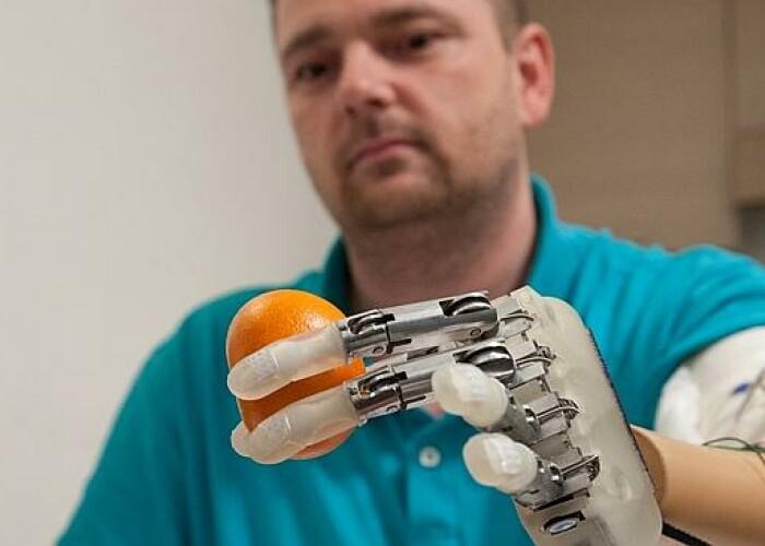 Un barbat si-a regasit simţul tactil, cu ajutorul unei proteze inovatoare! VIDEO