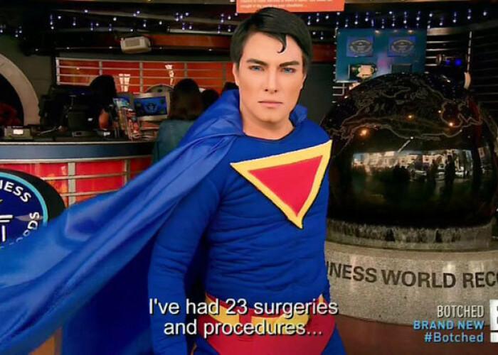 Si-a facut 23 de operatii ca sa arate ca Superman! Cum vrea sa ajunga sa aiba abdomen de otel