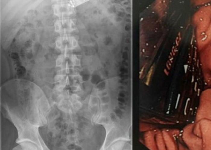 Ce au gasit gardienii in stomacul unui detinut dintr-o inchisoare irlandeza. L-au dus de urgenta la spital