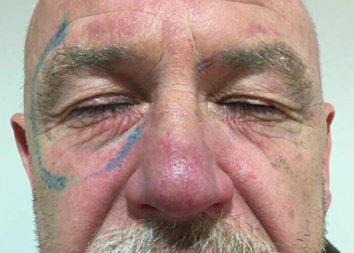 Hangover 4! Ce si-a tatuat un barbat pe fata dupa o noapte de pomina