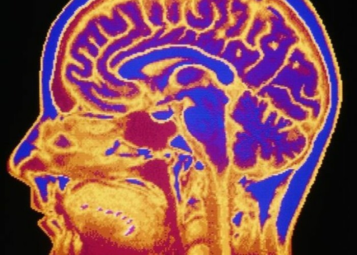 Studiu: creierul barbatului imbatraneste mai repede decat cel al femeii. Parkinsonul, mai frecvent printre reprezentantii sexului tare