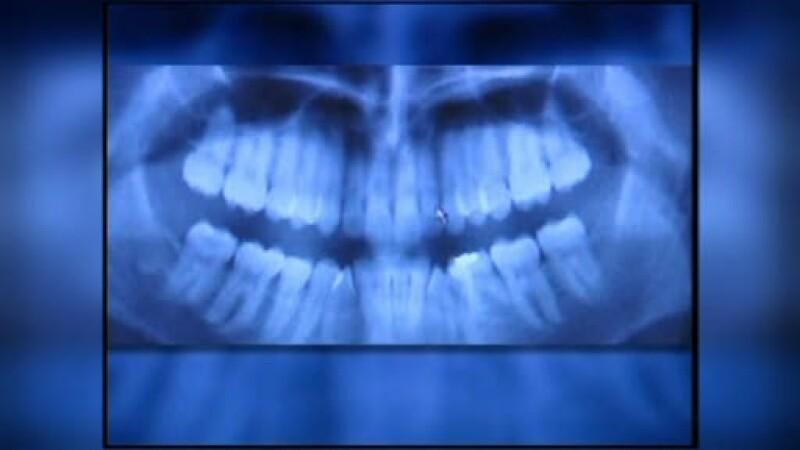 Un anumit tip de radiografie dentare creste riscul aparitiei unei tumori pe creier cu pana la 90%